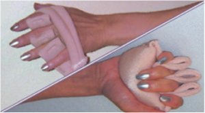 DermaSaverFingerSeperator
